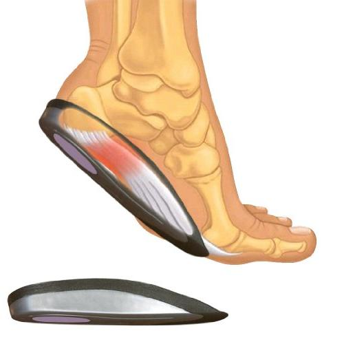 SmartSole Exercise Insoles Plantar and Performance Walking and Shoes. Pain Length